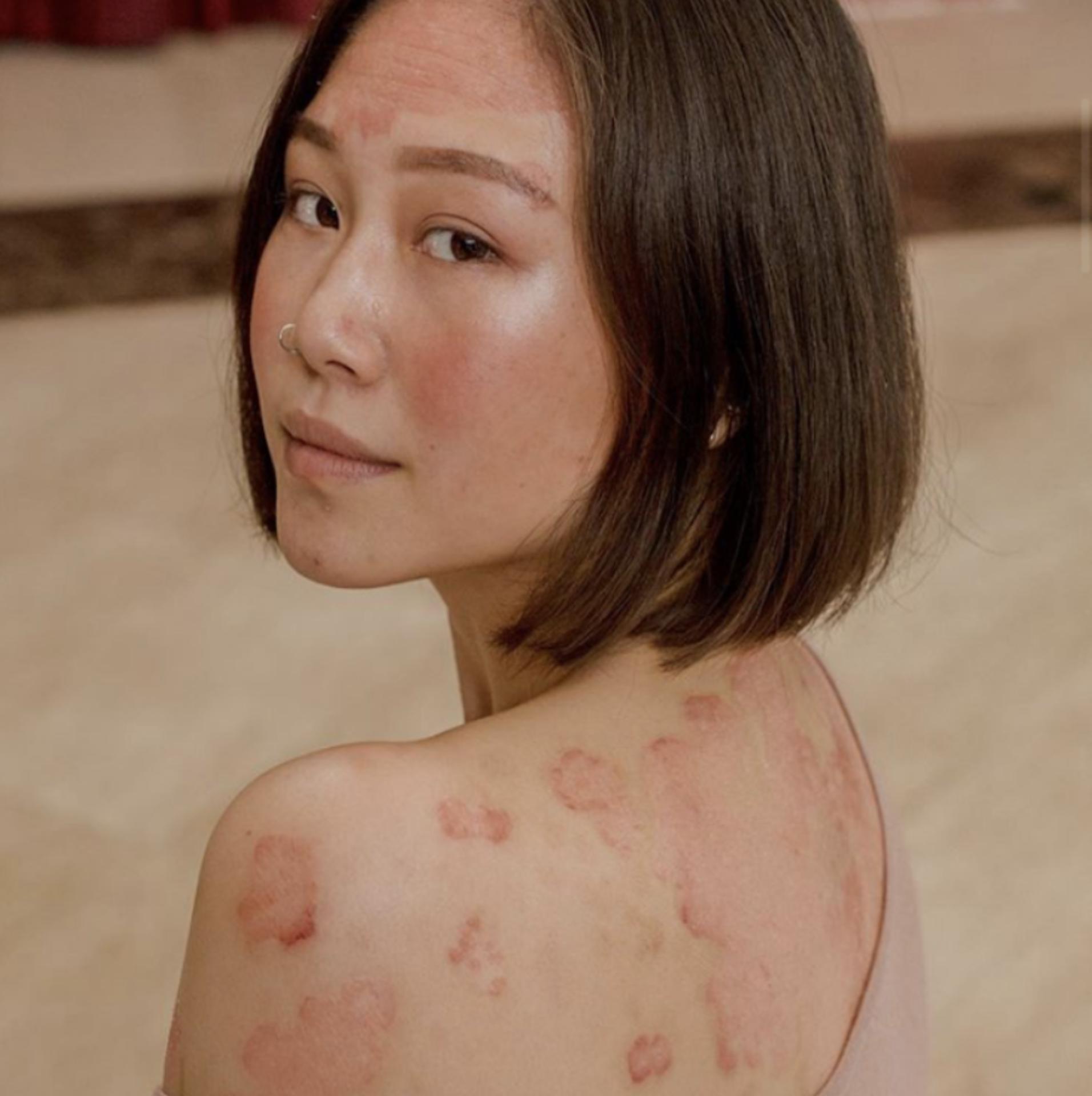 Celebrating your skin example photo